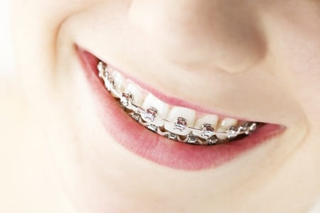 orthodontie clinique dentaire a anjou genevieve rompre